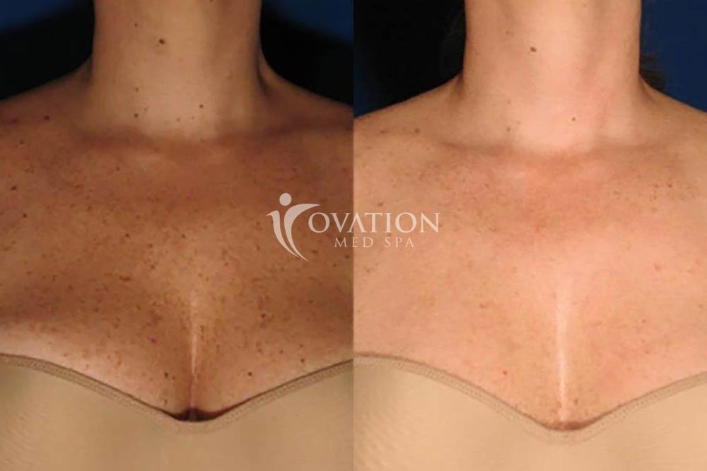 BBL™/ IPL Photofacial Before & After Photo | Houston, TX | Ovation Med Spa
