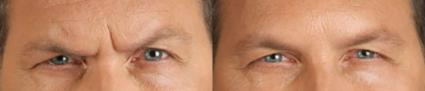 BOTOX®/Dysport® Before & After Photo | Houston, TX | Ovation Med Spa
