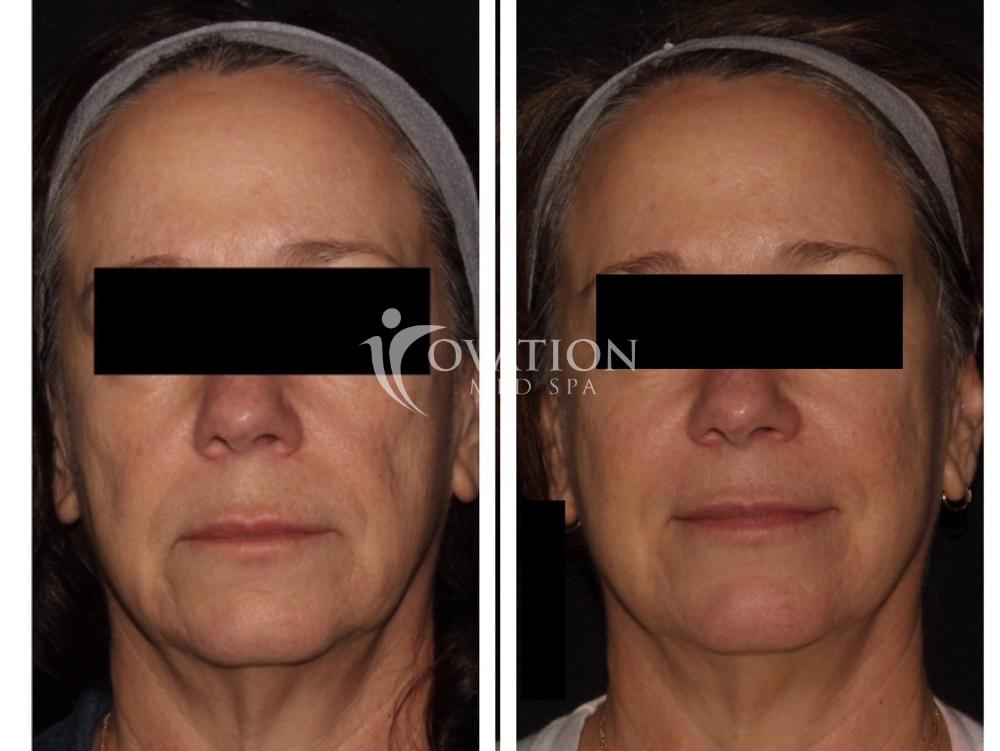 Dermal Fillers Before & After Photo | Houston, TX | Ovation Med Spa