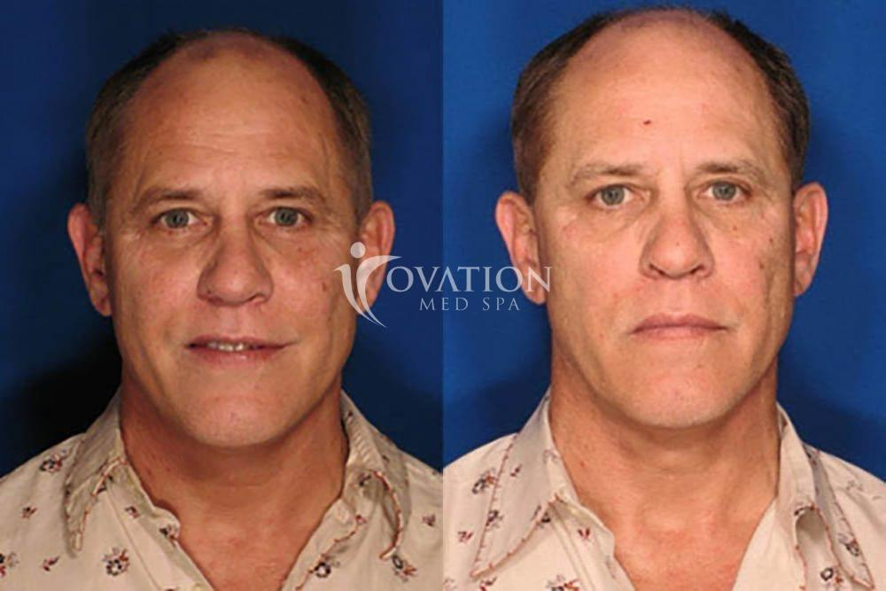 eMatrix RF Before & After Photo | Houston, TX | Ovation Med Spa