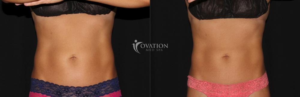EMSCULPT® Before & After Photo | Houston, TX | Ovation Med Spa