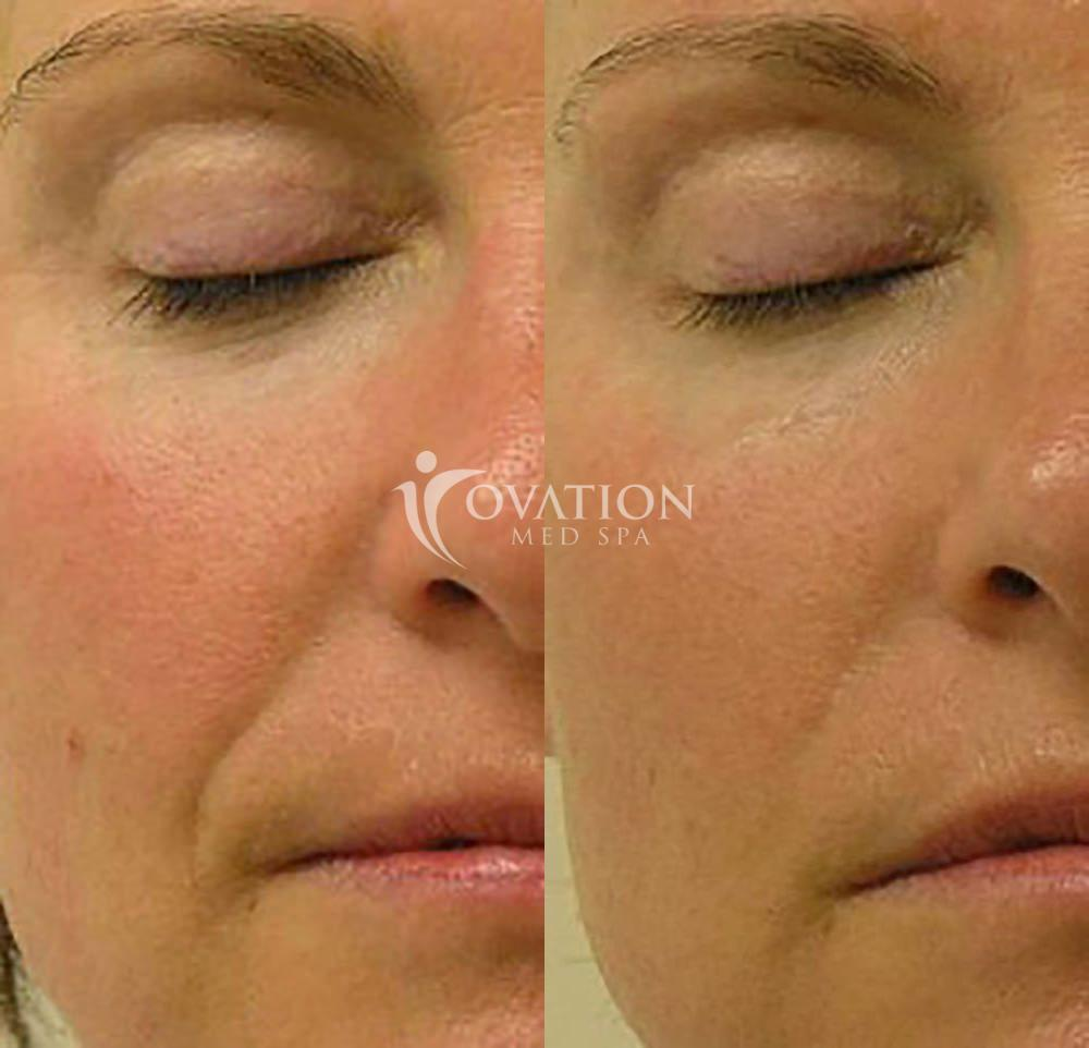 HydraFacial Before & After Photo | Houston, TX | Ovation Med Spa