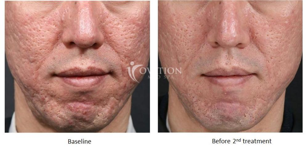 INTRAcel Skin Tightening Before & After Photo | Houston, TX | Ovation Med Spa