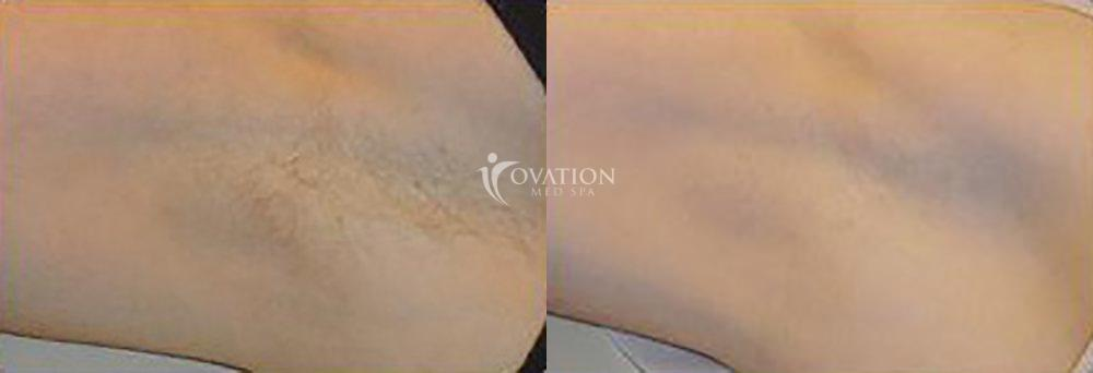 Laser Hair Removal Before & After Photo | Houston, TX | Ovation Med Spa