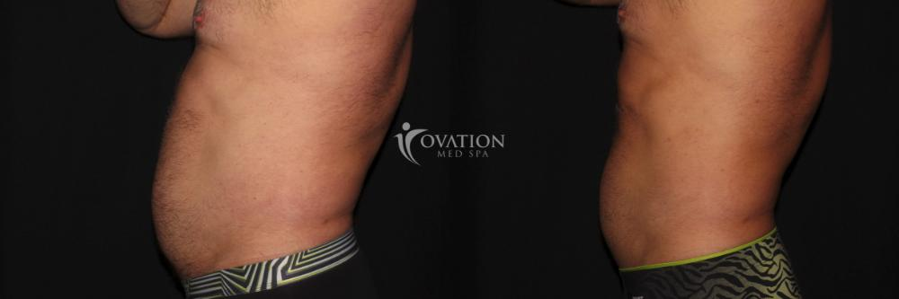 Ovation Ab Blaster Before & After Photo | Houston, TX | Ovation Med Spa