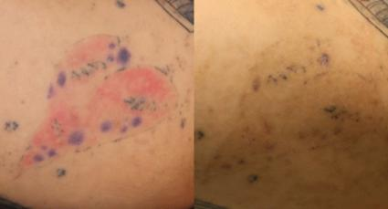 PiQo4 Laser Tattoo Removal Before & After Photo | Houston, TX | Ovation Med Spa