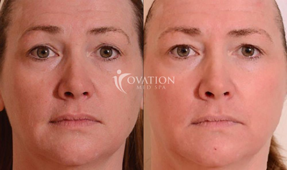 Sciton Halo™ Before & After Photo | Houston, TX | Ovation Med Spa