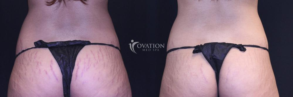Stretchmark Reduction Before & After Photo | Houston, TX | Ovation Med Spa