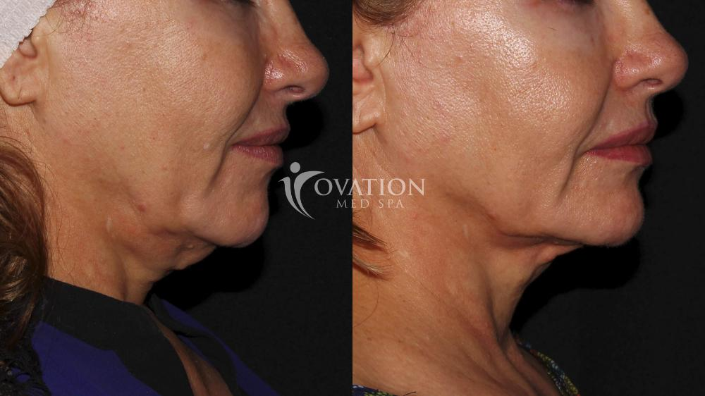 Ultherapy® Before & After Photo | Houston, TX | Ovation Med Spa