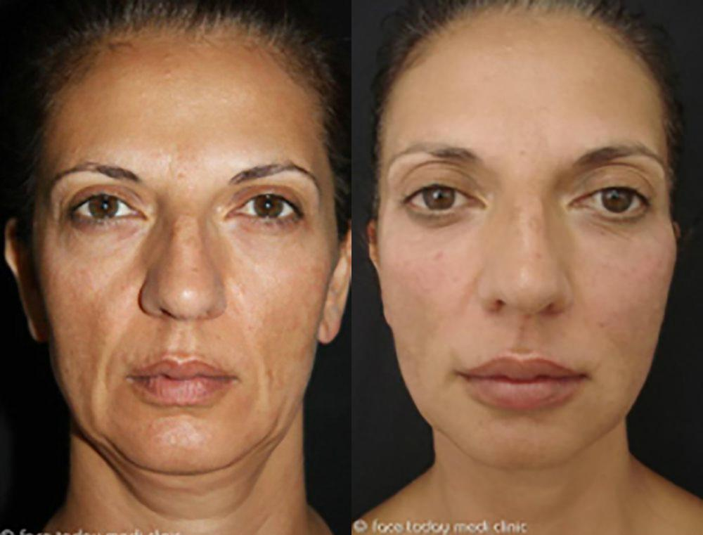 Vampire FaceLift™ Before & After Photo | Houston, TX | Ovation Med Spa