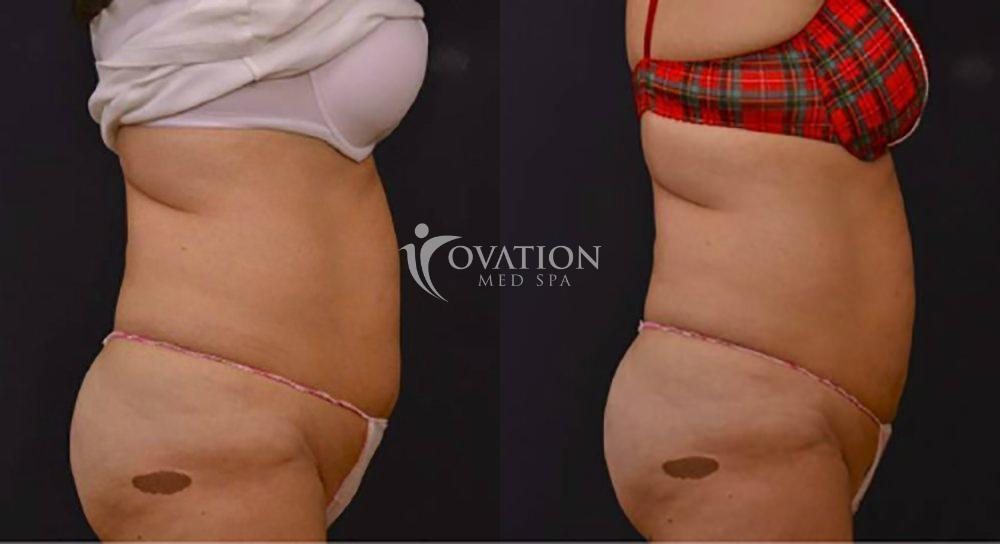 Vanquish® Fat Reduction Before & After Photo | Houston, TX | Ovation Med Spa
