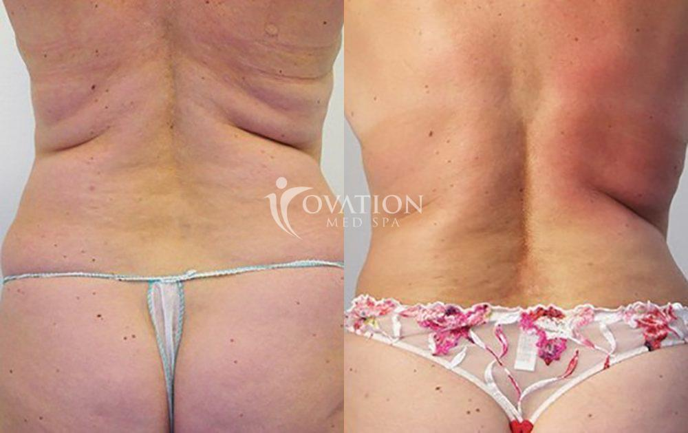 Venus Legacy™ Body Contouring Before & After Photo | Houston, TX | Ovation Med Spa