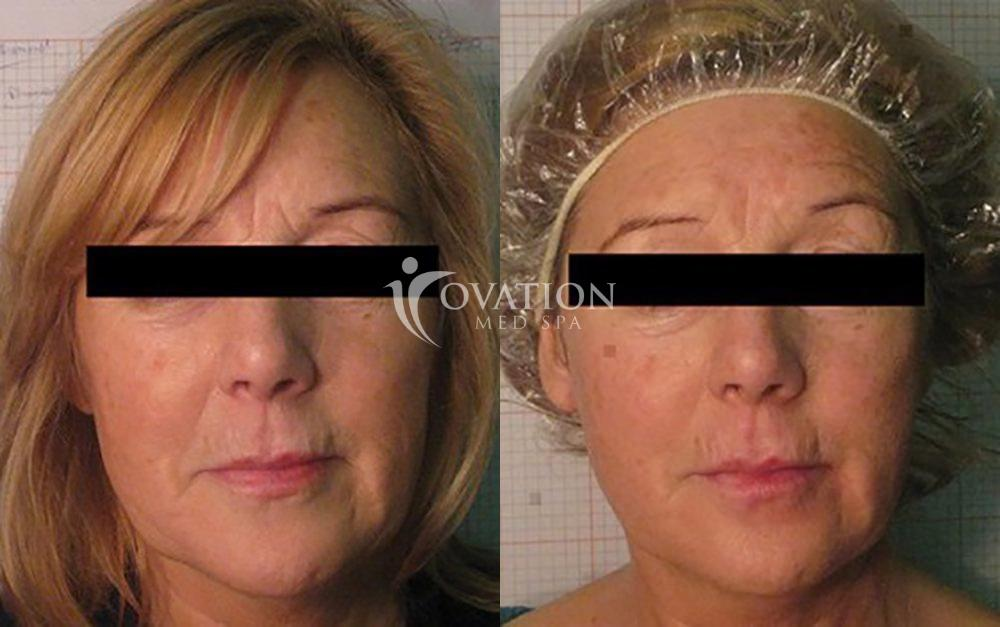 Venus Legacy™ Skin Tightening Before & After Photo | Houston, TX | Ovation Med Spa